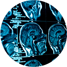 Brain and Spine Injuries image